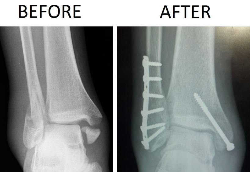 a fractured ankle before and after